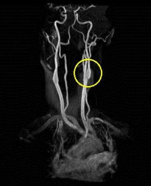 Repeat MRA 2–3 months later of left carotid artery dissection with vast improvement of lumenal patency.