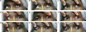Nine diagnostic action fields of gaze demonstrating restricted EOMs of the left eye.