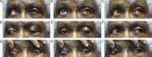 Nine diagnostic action fields of gaze demonstrating improvement in EOMS of the left eye.