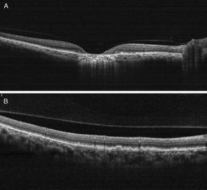 (A) On OCT examination in OD, the atrophic macular area correlated with a total absence of the outer retinal layers with shadowing into the choroid. (B) OCT revealing bumpiness at the level of the retinal pigment epithelium consistent with the drusenoid deposits seen throughout the posterior pole.