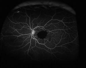 Fluorescein angiogram of the left eye shows blockage of fluorescein by the preretinal hemorrhage and no leakage is observed from the presumed location of the RAM.