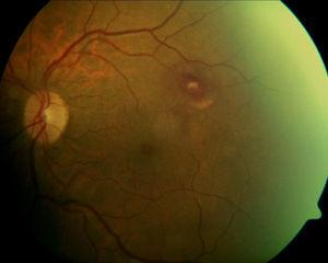 Two weeks status-post pars plana vitrectomy, a resolving RAM is visible along the superior-temporal arcades surrounded by resolving sub-retinal blood.