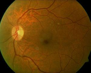 Five months status-post pars plana vitrectomy, resolution of the RAM is nearly complete.