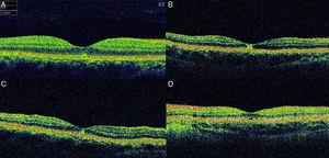 Optical coherence tomography (OCT) images of cases at presentation. In case 1 (A, spectral domain 3D OCT-2000, Topcon, Tokyo, Japan), there is a small disruption in the inner segment-outer segment (IS/OS) band in the fovea. In case 2 (B, time-domain Stratus OCT, Carl Zeiss Meditec, USA), a hyper-reflective area in the fovea affecting all retinal layers without increase in retinal thickness is detected. In case 3 (C, time-domain Stratus OCT, Carl Zeiss Meditec, USA), a small hyper-reflective area at the fovea can be appreciated. In case 4 (D, time-domain Stratus OCT, Carl Zeiss Meditec, USA), there is a defect in the inner hyper-reflective layer of the fovea.