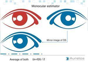 Enantiomorphism of the face. The left and right eyes show mirror symmetry with respect to the nasal axis. (Image courtesy: AURELIOS AUGENZENTRUM.)
