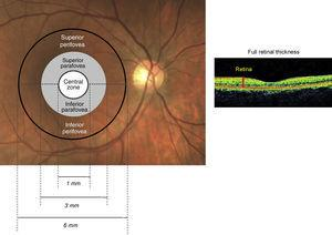 Schematic of the retinal zone assessed for full retinal thickness.