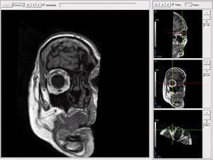Processing images with MRI. Plane between 4 and 7mm anterior to the point where the optic nerve enters the eyeball allows the visualization and the study of the LR–SR band.