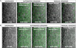 """(A) Representative sample cornea with larger cell size and low cell size variation (CV<32), before (ungraded) and after fully-automated, semi-automated or manual grading. Endothelial cell density (ECD) error between manual methods is 1.4%. Compared to mean manual ECD, error with automated methods is reduced from 231% with the fully-automated method to 4.4% with the semi-automated method by the grader's manual correction of cell size (from """"S"""", as the default cell size with the fully-automated method, to """"XL"""" selected in semi-automated method). (B) Representative sample cornea with polymegathism (CV≥32) before (ungraded) and after automated or manual grading. Note how, with polymegathism, no single cell size option from the automated method accurately approximates the manual endothelial cell density (ECD) value [error ranging from 16.2% (M) to 43.7% (S) to 43.5% (L)]. + This is NOT the manufacturer's recommended practice for the given cornea."""