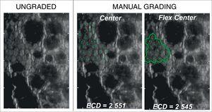 Representative sample cornea with severe guttata (guttae covering >40% of the viewable field) resulting in a drastically low number of gradable cells (INP<100) graded by different manual methods.