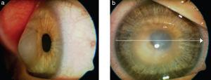 In this image we can appreciate post-LASIK keratectasia with cornea budged forwards and edematous central cornea. Image reproduced under the CC-NY License. Meyer H et al., 2009. J Ophthalmol. http://www.ncbi.nlm.nih.gov/pubmed/20339447.