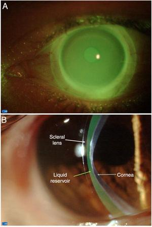 Frontal view of the miniscleral contact lens fitting (A) and relationship with the ocular surface (B).