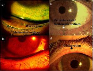 Lid margin. (a) Extension of green lissamine toward meibomian orifices: Marx's line; (b) red filter show irregularity of lid margin; (c) retroplacement of Meibomian orifices; (d) obliteration. The punctum of the orifice may not be visible and vascular invasion is visible.