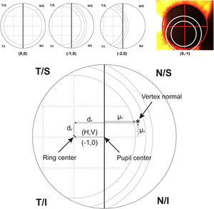 Top image shows an example of the ordinal scale used for evaluating the intraocular lens centration. The diagram describes the right eye with the pupil divided by a vertical line. The first ring of the lens is divided in 4 sections that serve as a reference to measure the displacement to the pupil center. From left to right, the lens is centered (0.0), 25% temporal (−1.0) and 50% temporal (−2.0) the size of the first ring. The last top image shows a real example with pupil divided by a red cross and rings of the lens marked with white circles for a clear visualization. For vertical centration, the same approach was performed dividing the pupil by a horizontal line. Bottom image shows the system of coordinates used in the research (For interpretation of the references to colour in this figure legend, the reader is referred to the web version of this article).