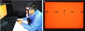 Experimental set up for measuring flicker thresholds in emmetropes and myopes at different retinal eccentricities. (A) The subject is performing the test to identify the location of the stimulus at different retinal eccentricities to measure the flicker thresholds with the help of keypad. (B) The appearance of the screen view when the test is on and the locations of the stimulus present at different retinal eccentricities. The circle in the panel B indicates stimulus locations.