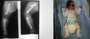 Fractura obstétrica femoral derecha en recién nacido. El fragmento proximal se desplaza en flexión. Tratamiento con arnés de Pavlik.