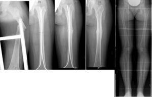 Niña de 13 años, con fractura 1/3 medio femoral izquierda. Tratamiento con clavos TENS. Controles radiológicos al mes, a los 3 meses, al año y a los 2 años, postfractura mostrando una perfecta consolidación sin hipercrecimiento femoral.