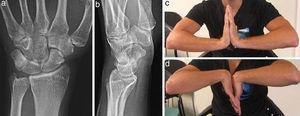 Radiografía simple AP y lateral (a y b), y flexo-extensión de muñeca (c y d) un año tras la lesión.