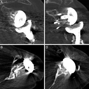 Cortes coronales y axiales de las TC de control de 4 de los pacientes en los que se visualiza la integración del injerto óseo utilizado para la glenoplastia tanto en caso de ser aloinjertos (A y B) como en los autoinjertos (C y D).