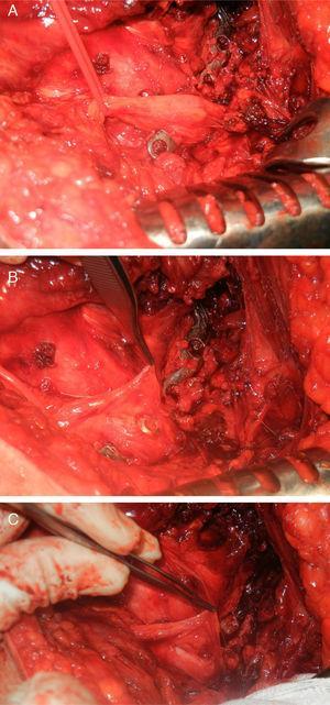 Imágenes intraoperatorias. A) Identificación del nervio ciático sobre la placa de osteosíntesis, se observa engrosamiento del nervio en la zona. B) Disección inicial donde se aprecia la protrusión de uno de los tornillos de osteosíntesis. C) Situación final tras retirar la placa en la que destaca la presencia de un ojal formado en el espesor del nervio ciático.