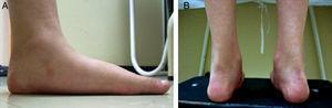 A) y B) Imágenes de uno de los pacientes evaluados para pie plano laxo con los criterios descritos