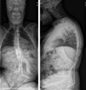 Radiografías en las que se aprecia movilización del anclaje ilíaco izquierdo.