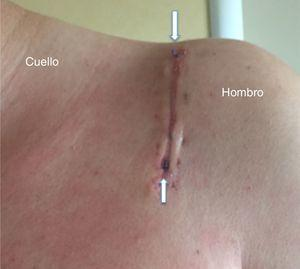 Caso número 8. Cicatriz hipertrófica presente en la revisión de los 2 meses. Podemos observar la extrusión de suturas del tejido subcutáneo en la parte proximal y distal de la herida (flechas blancas).