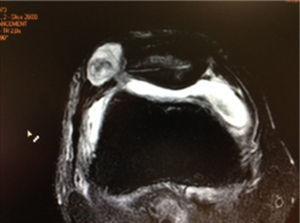RM del caso en que apareció una fístula de líquido sinovial por artrotomía accidental al realizar la sección del alerón rotuliano externo.