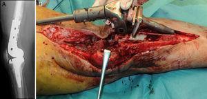 Radiografía lateral de una prótesis tumoral de rodilla con diagnóstico de infección periprotésica (A). Momento de la extracción de los implantes infectados (B).