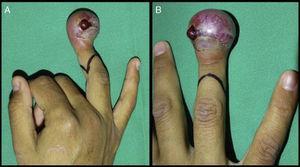A y B) Se observa el aspecto clínico del dedo anular derecho, con gran compromiso de tejidos blandos y dolor.