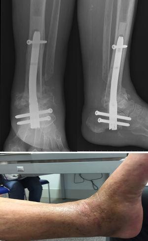 Detalle de la fusión tibioastragalina; observar el cemento rodeando al clavo en la radiografía. Debajo, imagen clínica de úlcera cicatrizada y ausencia de signos de infección.
