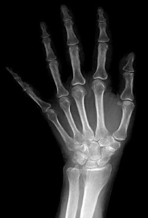 Radiografía posteroanterior preoperatoria de muñeca izquierda; se observa artrosis escafotrapeciotrapezoidea gradoiii según la clasificación de Crosby et al.4.
