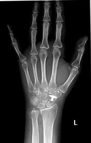 Radiografía posteroanterior de muñeca izquierda posquirúrgica de 36 meses de evolución.