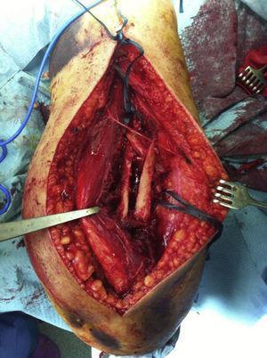 Foco de fractura con atrapamiento del nervio radial.