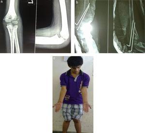 a) Imagen preoperatoria anteroposterior y lateral de desplazamiento de fractura condilar lateral de húmero en un niño de 10 años; b) Imagen postoperatoria A-P e imagen de fractura condilar lateral de húmero, que refleja fijación de la fractura con 2 alambres K, y c) Seguimiento a los 2 años de un caso de fractura condilar lateral de húmero.