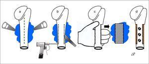 Representación esquemática de la resección en bloque de un osteocondroma implantado en más de la mitad de la cara posterior del húmero proximal: abordaje longitudinal anterior (línea discontinua) y exposición del osteocondroma con palancas (a); osteotomía humeral con escoplo, previas perforaciones (b); extracción manual del osteocondroma (c); y reconstrucción con homoinjerto tallado fijado con 3 tornillos (d).