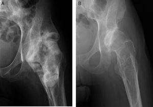 A) Radiografía de caderas en proyección AP en la que se aprecia OPA de cadera izquierda que engloba toda la articulación en un paciente afecto de lesión medular ASIAA de 10 años de evolución. B) Radiografía de caderas en proyección AP a los 3 años tras la exéresis de OPA.