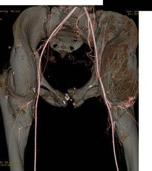 Angio-TC de planificación preoperatoria en la que se puede valorar la vascularización cercana a la OPA de cadera izquierda con el objetivo de minimizar riesgos de daño vascular durante la cirugía.