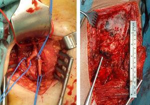 A) Arteria femoral superficial y profunda en íntimo contacto con OPA, localizadas antes de la exéresis de OPA de cadera izquierda. B) Imágenes macroscópicas de OPA de cadera izquierda tras abordaje anterior de Smith-Petersen.