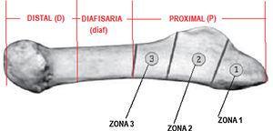 División del quinto metatarsiano en sus zonas anatómicas.