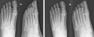 a) Fractura de la base del quinto metatarsiano del pie izquierdo. b) Evolución a los dos meses de tratamiento funcional.