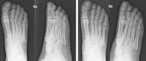 a) Fractura subcapital del quinto metatarsiano asociada a fractura diafisometafisaria desplazada del cuarto metatarsiano del pie derecho. b) Evolución a los cuatro meses.