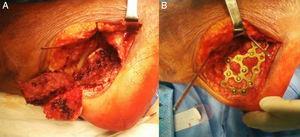 A) Reducción de la articulación subastragalina tras exéresis de la pared lateral. B) Fijación de la fractura mediante placa de reconstrucción de bajo perfil.