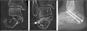 Progresión de una fractura tipoIV de Sanders a una artrodesis subastragalina tras osteosíntesis primaria.