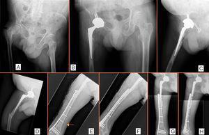 Fractura del cuello del fémur tratada con sustitución total de cadera con inestabilidad intraoperatoria (A-C). Fractura periprotésica tratada con placa (D-H). Fractura iatrogénica intraoperatoria (E, flecha).