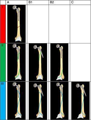Sistema de clasificación de las fracturas interprotésicas según Platzer.