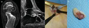 Caso 2: TC del retropié en un plano axial demostrando el nidus calcificado (círculo) (a). RM en plano sagital localizando el nidus en la cabeza del astrágalo (flecha) con edema óseo y de partes blandas y sinovitis adyacente (b). Exposición quirúrgica del nidus para la resección en bloque (c). Pieza de resección (d).