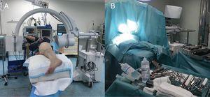 Cadera izquierda. A) Colocación del paciente y de la radioscopia intraoperatoria. B) Montaje del campo quirúrgico.