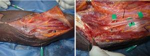 Disección tercio proximal antebrazo. Distal: izquierda. LC: lacertus fibrosus, por debajo está el NM (flecha negra corta). Derecha: levantado el LC se observa el NM penetrando por debajo de la fascia profunda de PT (asterisco). Se observan ramas para el músculo PT (flechas negras largas). La arteria braquial se encuentra lateral al NM.