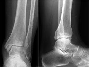 Mismo paciente, 18 meses tras fractura SERIV. Nótese el escalón articular residual y la presencia de esclerosis subcondral y osteófito tibial anterior. Presenta AOFAS de 80puntos.