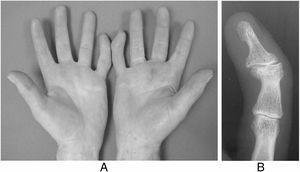 Clinodactilia adquirida postraumática de ambos dedos meñiques de jugador profesional de pelota mano. A) Imagen de jugador profesional de pelota: clinodactilia bilateral e hiperqueratosis palmar. B) Radiografía de 5.° dedo de mano en proyección anteroposterior en la que se aprecia clinodactilia postraumática.